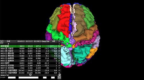脳体積をリスト表示