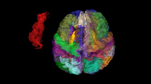 使いやすいユーザインタフェース。MRI画像からの脳部位別体積測定・表示