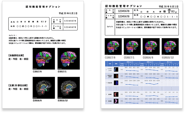 MRI保有施設の脳ドックオプションの即戦力!