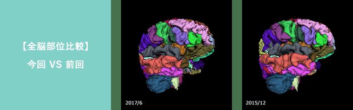全脳部位比較