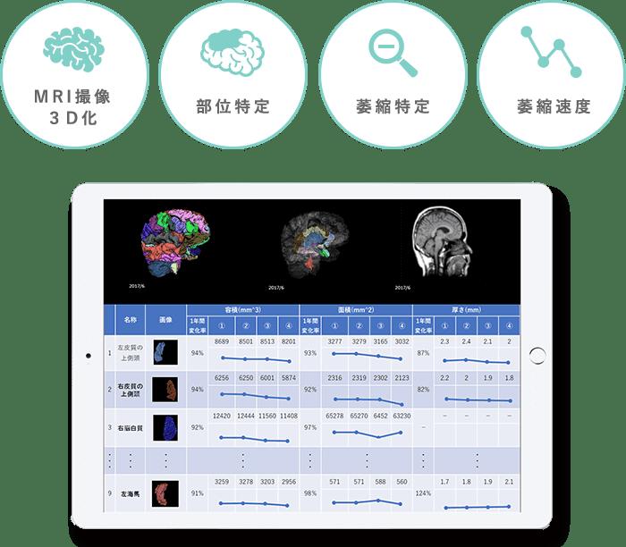 効果判定・薬効評価に基づく、適確な認知症医療実現への挑戦