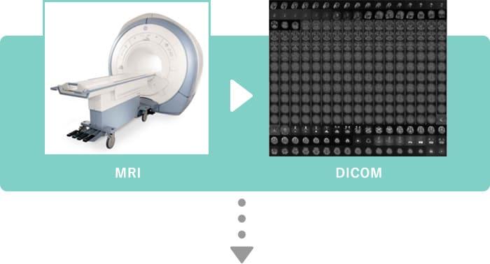 圧倒的な使いやすさを誇るユーザインタフェースによる、MRI画像からの脳部位別体積測定への取り組み