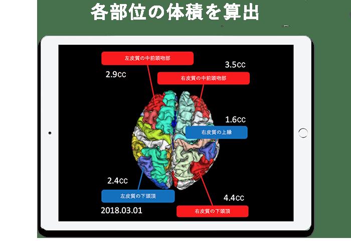 既存のMRI画像から海馬だけでなく、133部位に分割し、体積を精度高く測定
